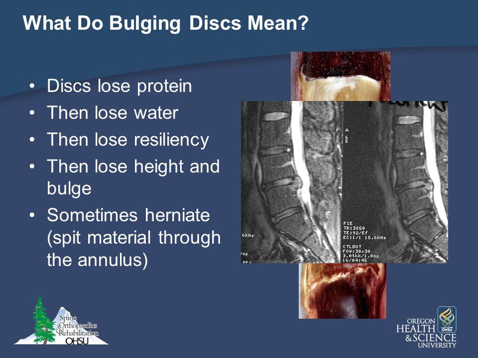 What Do Bulging Discs Mean