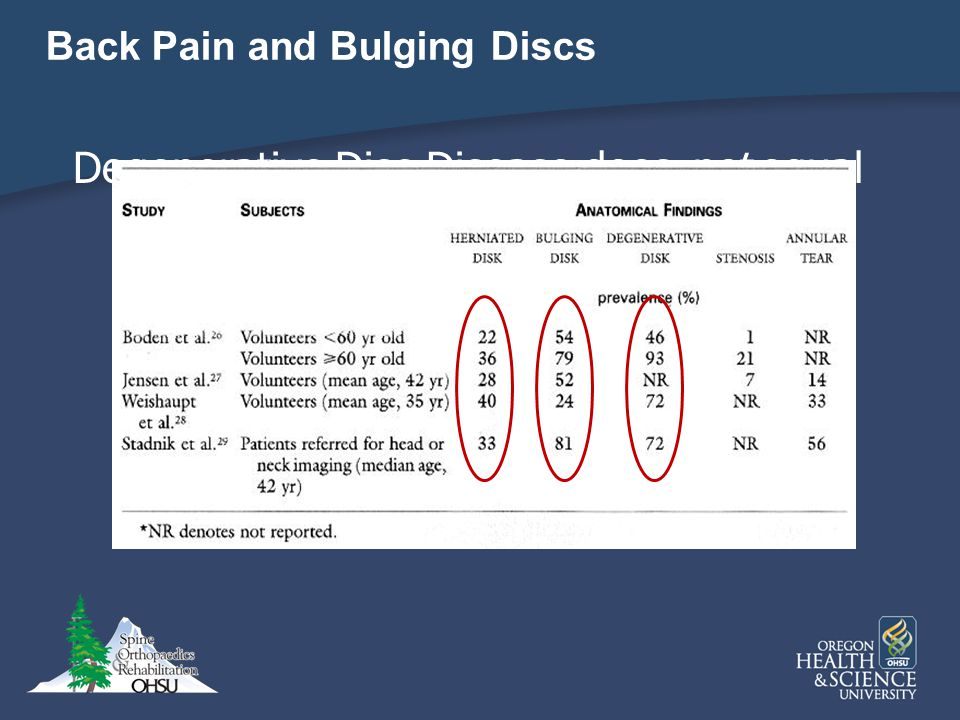 Back Pain and Bulging Discs