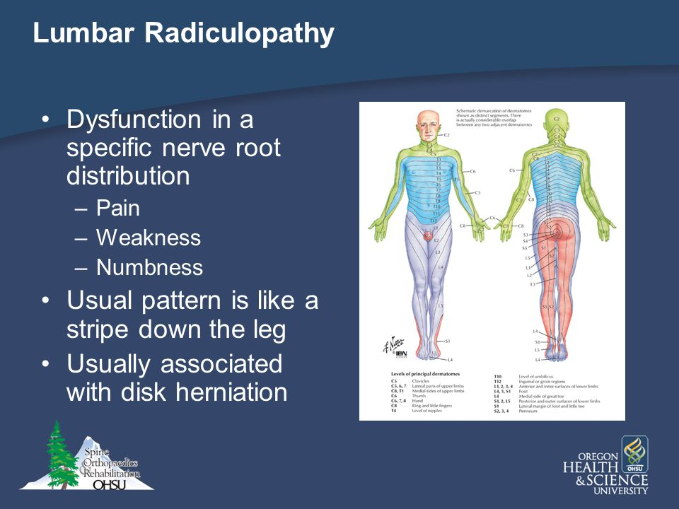 Lumbar Radiculopathy Dysfunction in a specific nerve root distribution