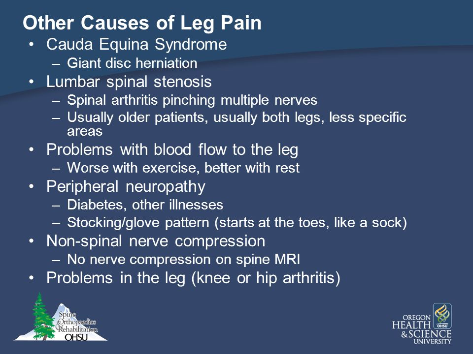 Other Causes of Leg Pain