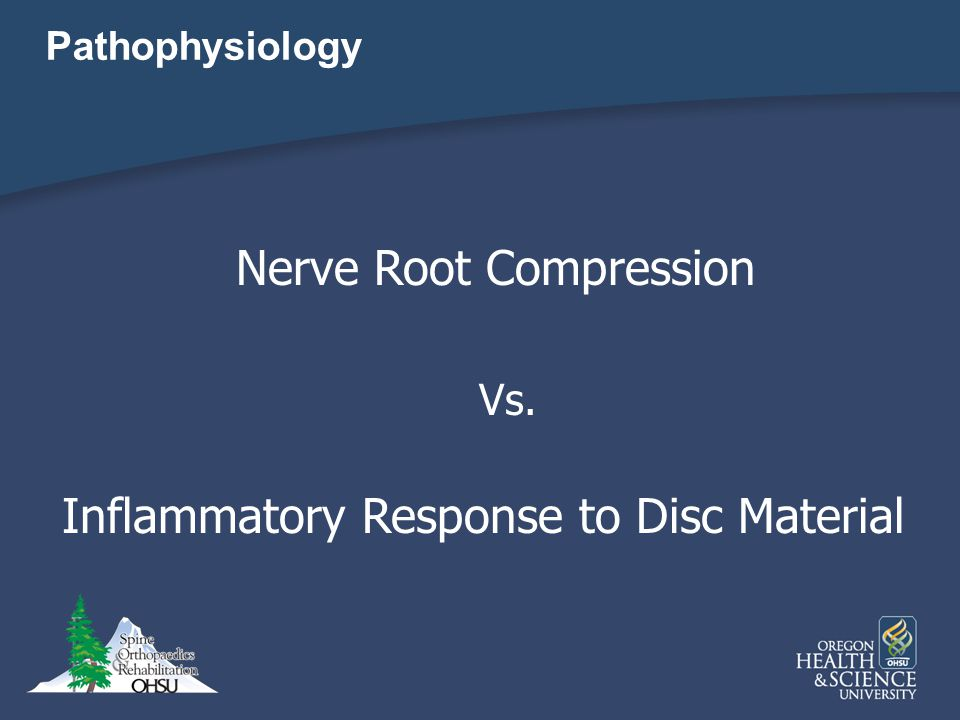 Nerve Root Compression