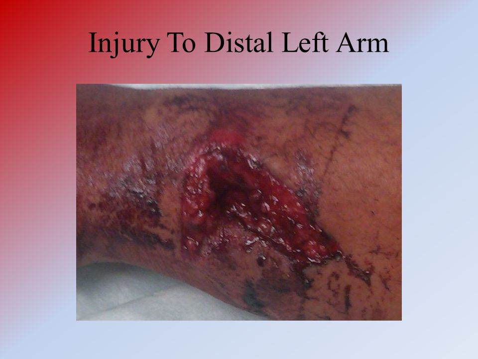 Injury To Distal Left Arm