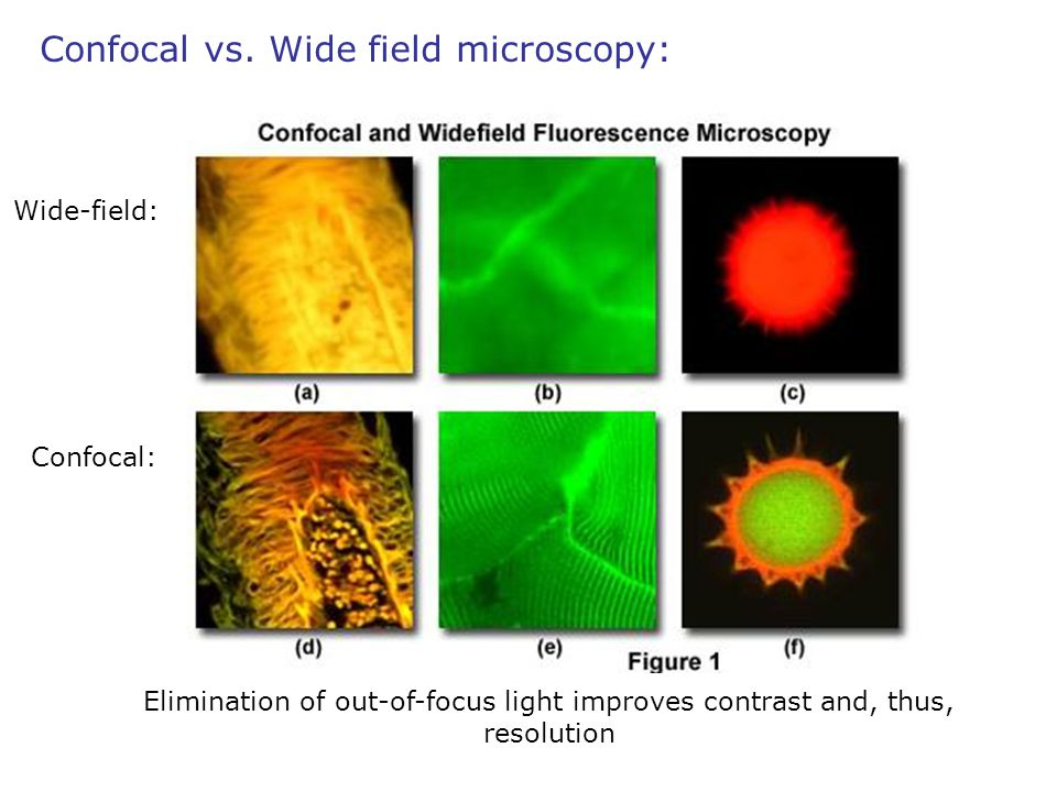 Confocal vs. Wide field microscopy: