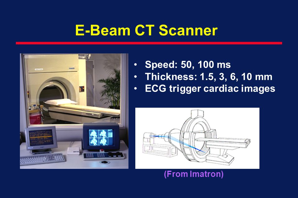 E-Beam CT Scanner Speed: 50, 100 ms Thickness: 1.5, 3, 6, 10 mm
