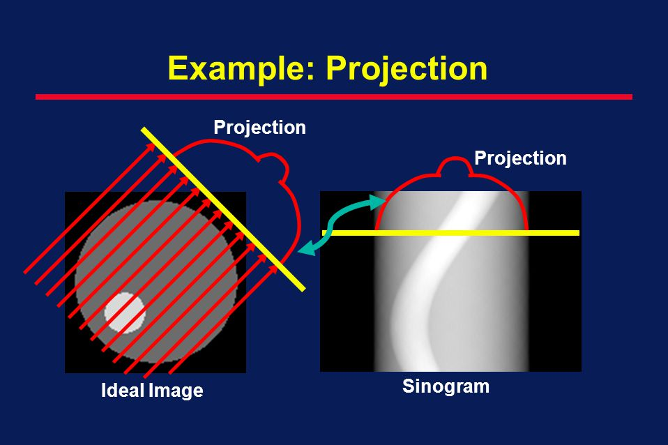 Example: Projection Projection Projection Sinogram Ideal Image