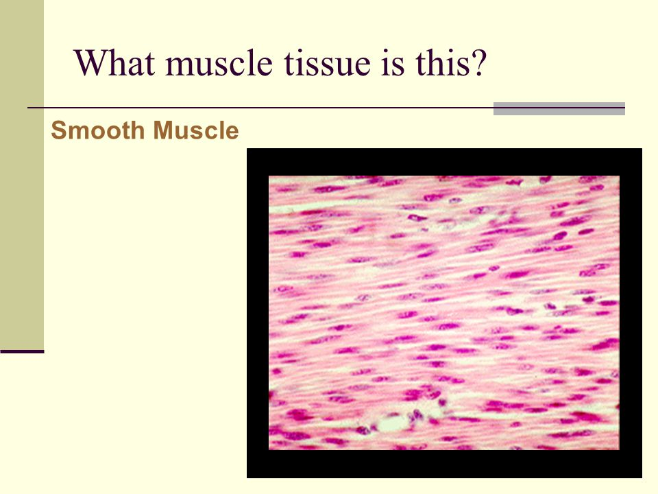What muscle tissue is this