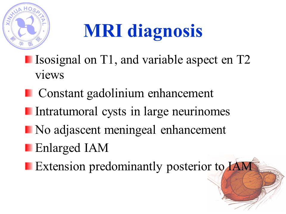 MRI diagnosis Isosignal on T1, and variable aspect en T2 views