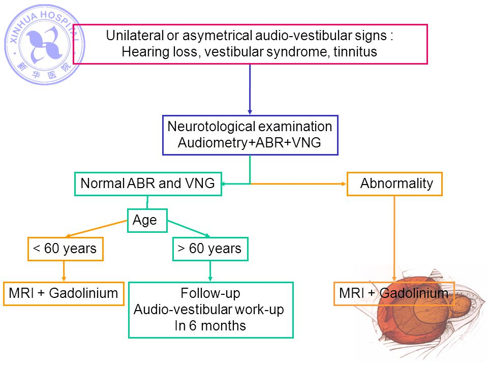 Unilateral or asymetrical audio-vestibular signs :