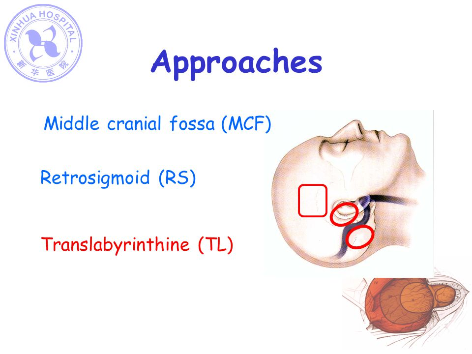 Approaches Middle cranial fossa (MCF) Retrosigmoid (RS)