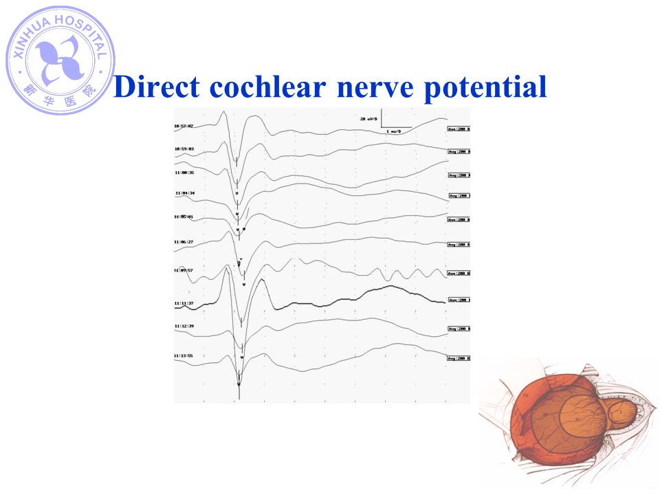 Direct cochlear nerve potential