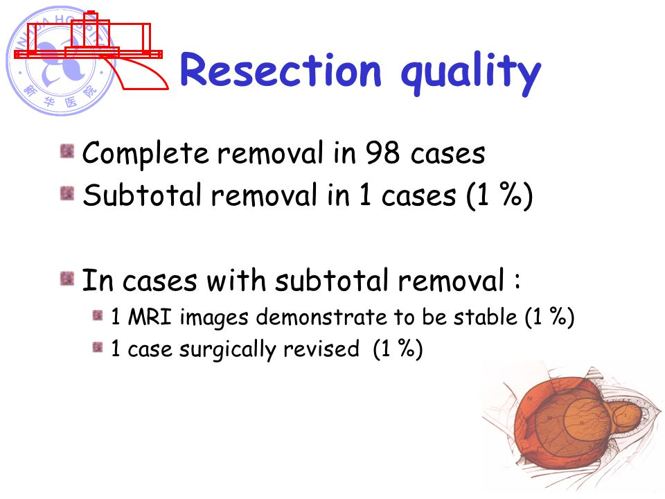 Resection quality Complete removal in 98 cases
