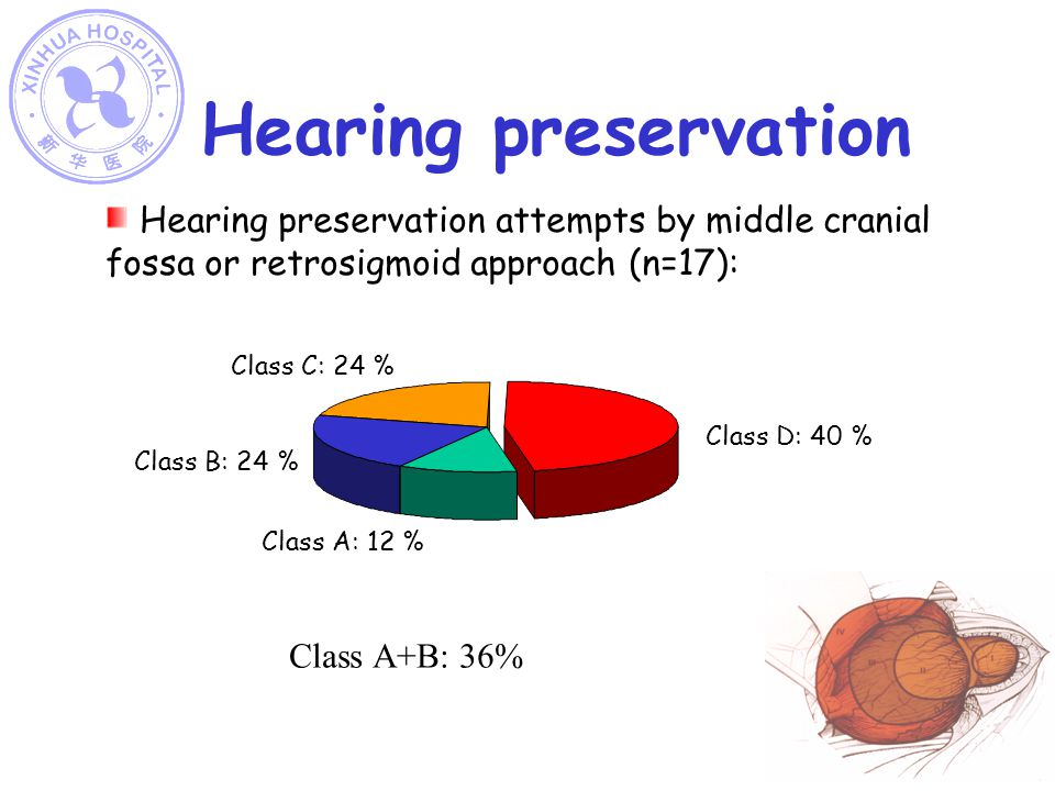 Hearing preservation Hearing preservation attempts by middle cranial fossa or retrosigmoid approach (n=17):