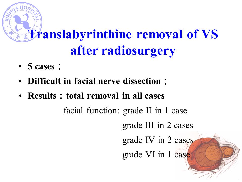 Translabyrinthine removal of VS after radiosurgery