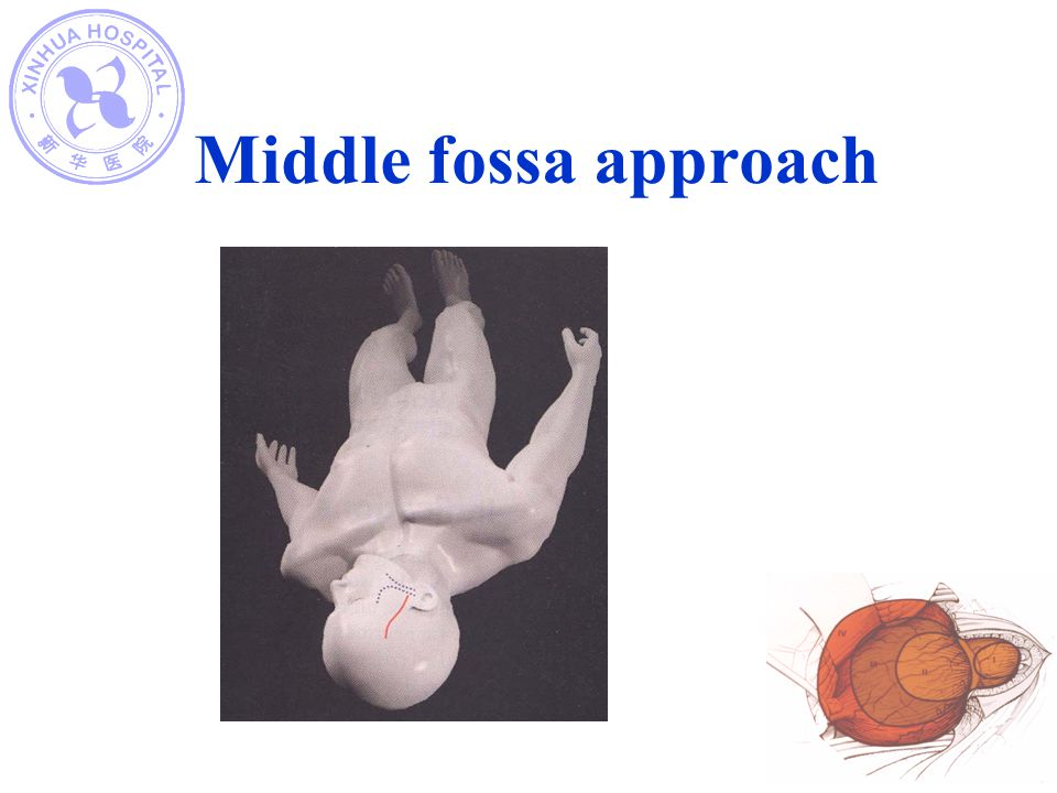 Middle fossa approach