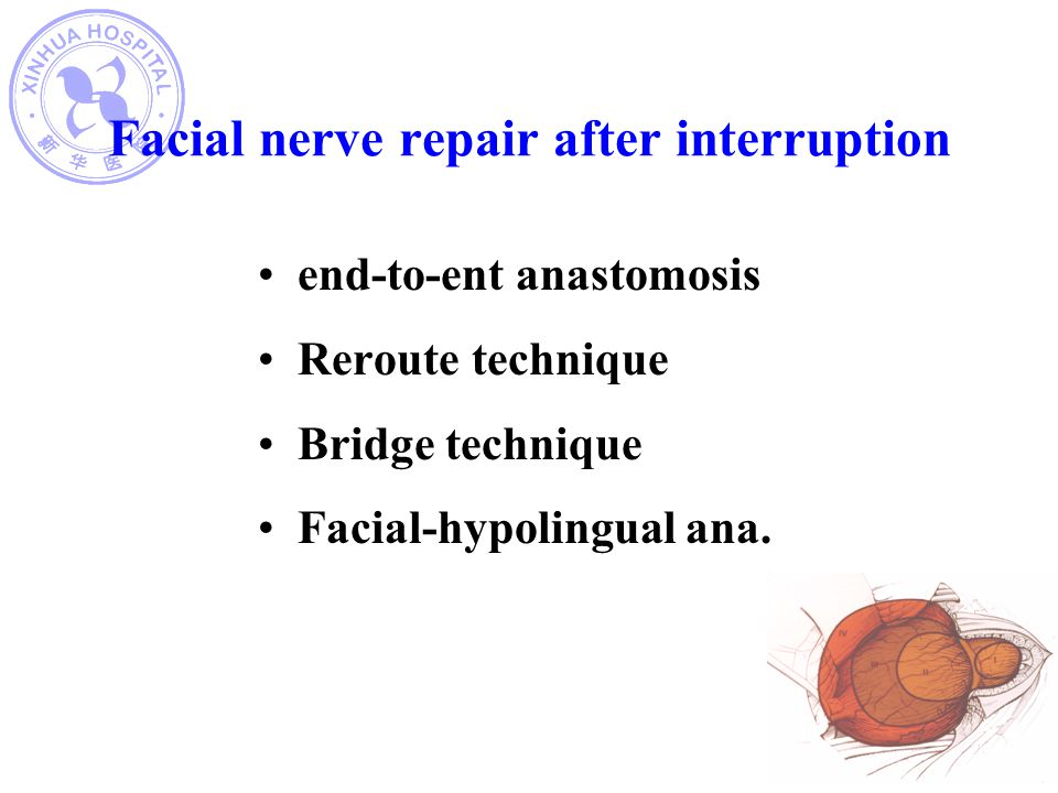 Facial nerve repair after interruption