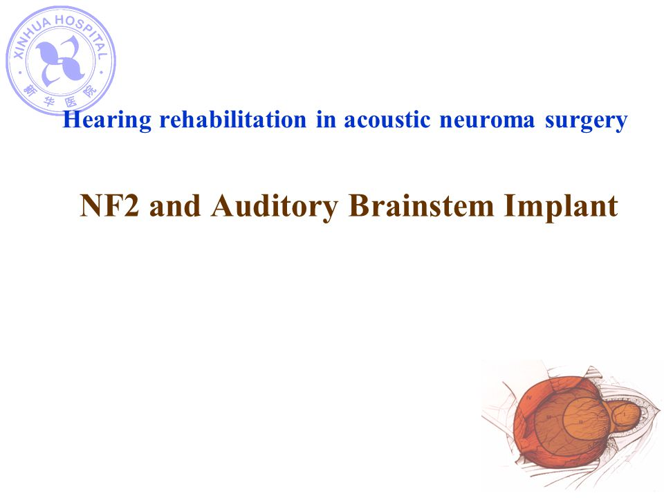 Hearing rehabilitation in acoustic neuroma surgery