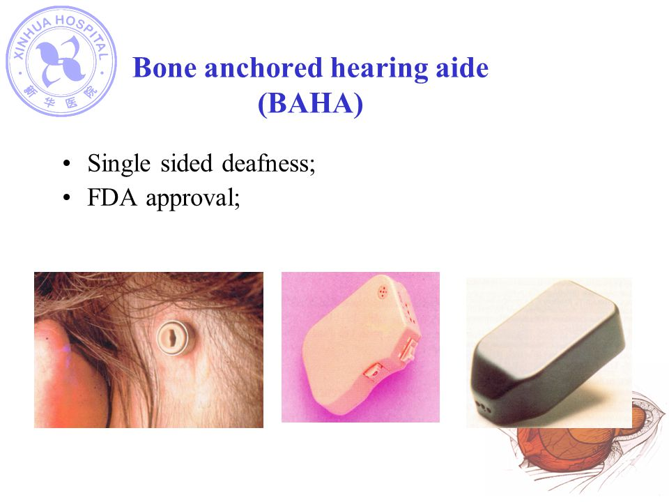 Bone anchored hearing aide (BAHA)