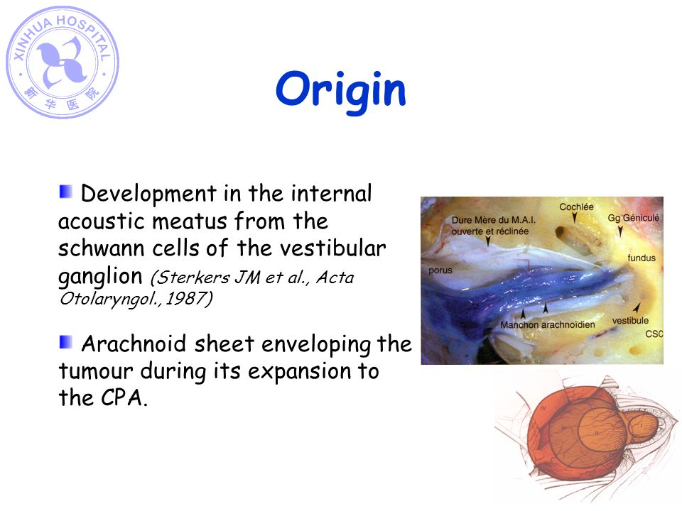 Origin Development in the internal acoustic meatus from the schwann cells of the vestibular ganglion (Sterkers JM et al., Acta Otolaryngol., 1987)