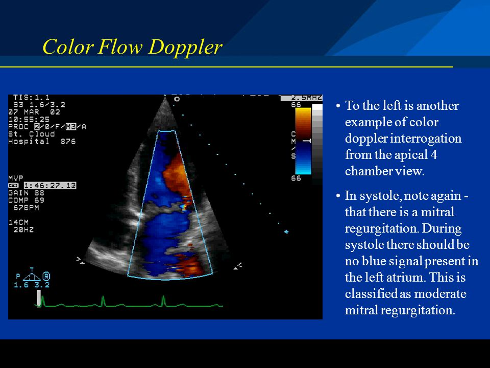 Color Flow Doppler To the left is another example of color doppler interrogation from the apical 4 chamber view.