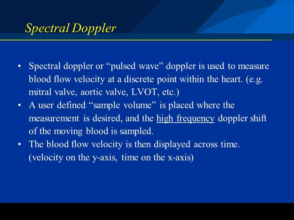 Spectral Doppler