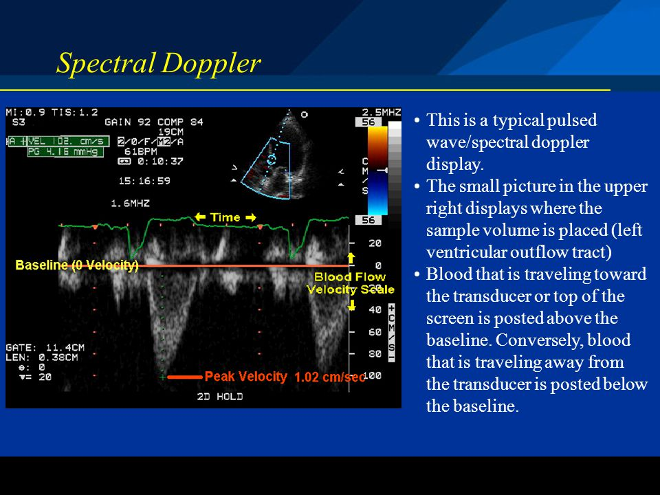 Spectral Doppler This is a typical pulsed wave/spectral doppler display.