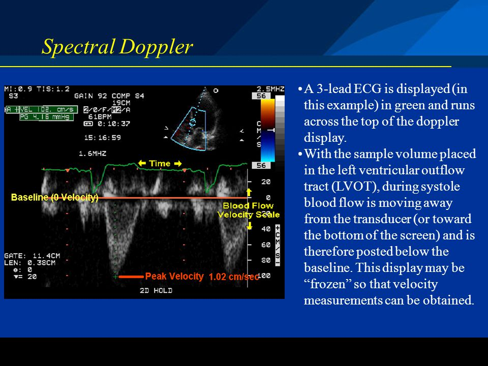 Spectral Doppler A 3-lead ECG is displayed (in this example) in green and runs across the top of the doppler display.