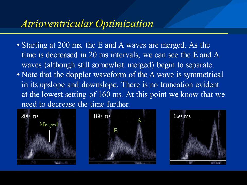 Atrioventricular Optimization