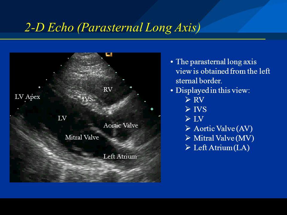 2-D Echo (Parasternal Long Axis)