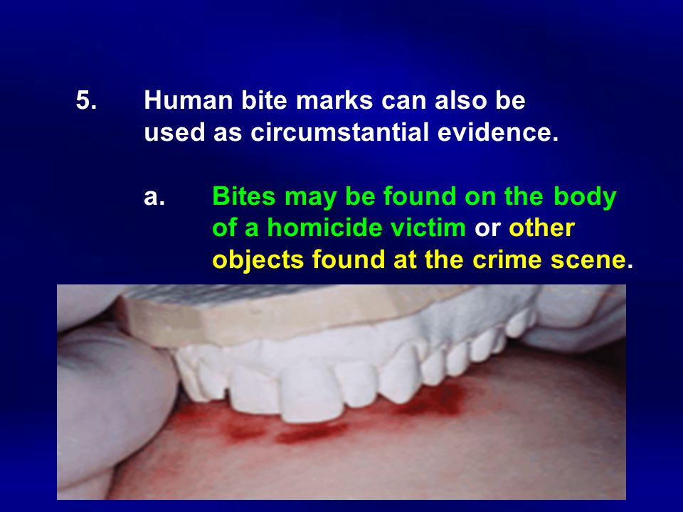 5. Human bite marks can also be. used as circumstantial evidence. a