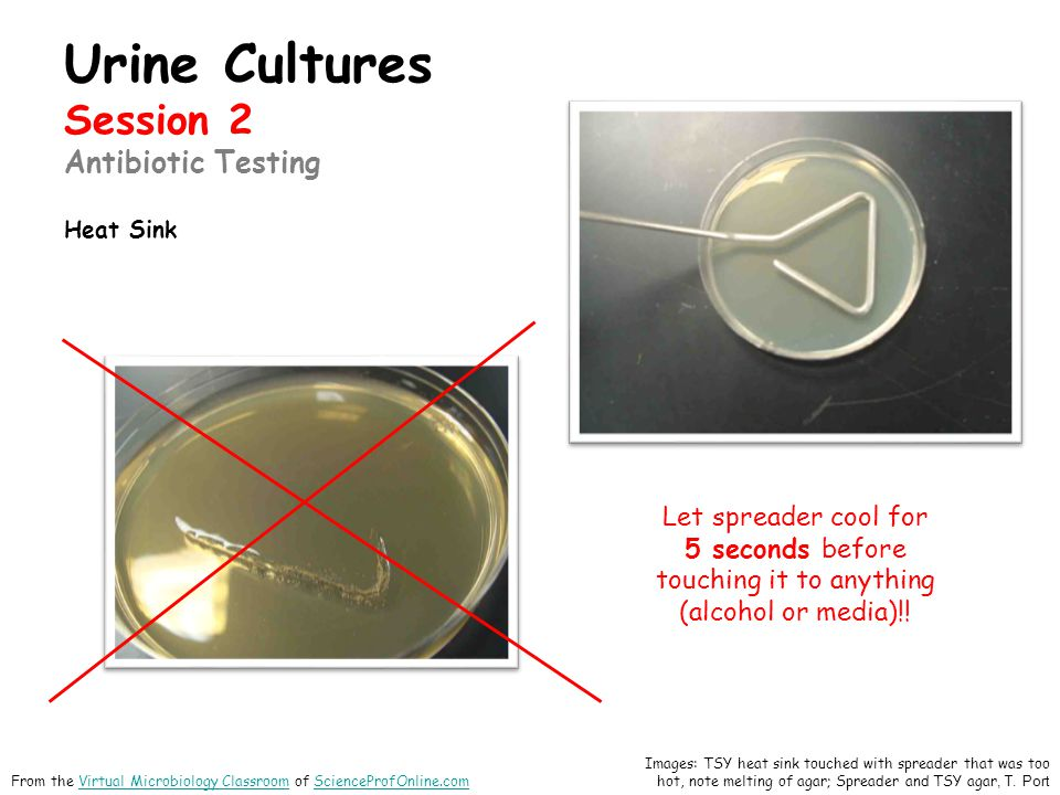 Urine Cultures Session 2 Antibiotic Testing Heat Sink