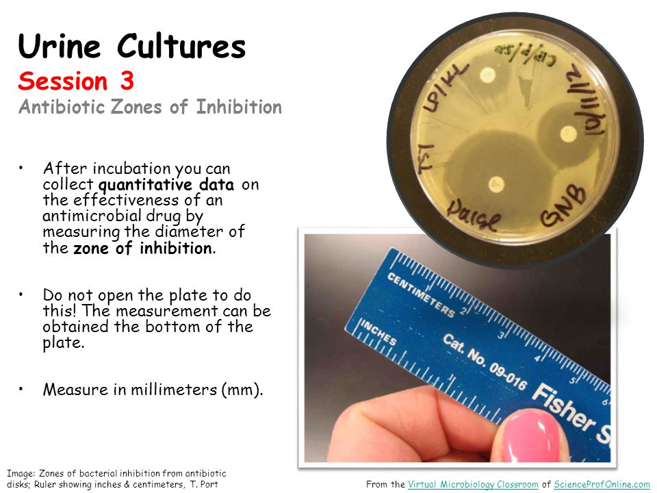 Urine Cultures Session 3 Antibiotic Zones of Inhibition