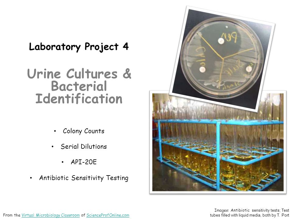Urine Cultures & Bacterial Identification