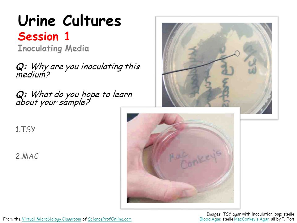 Urine Cultures Session 1 Inoculating Media