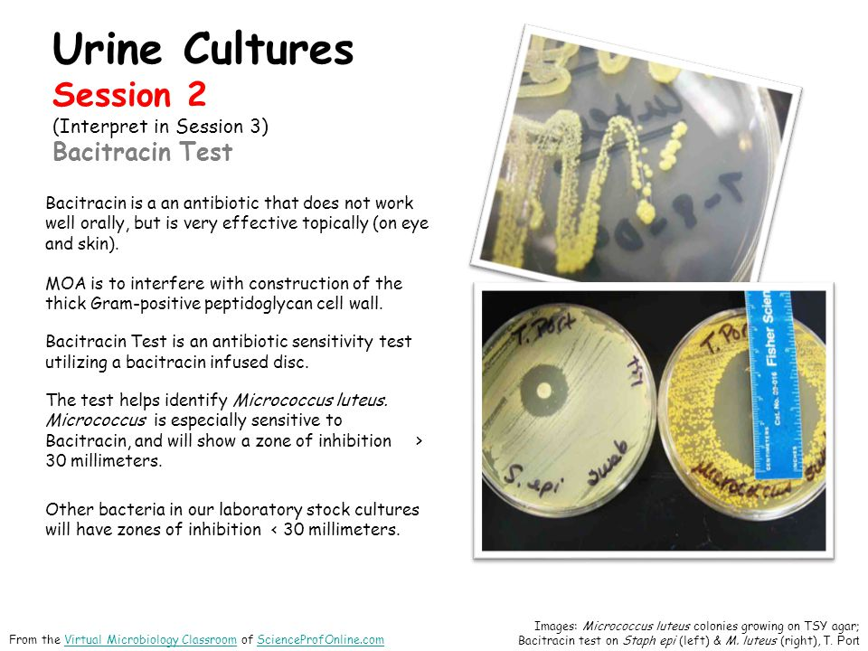 Urine Cultures Session 2 (Interpret in Session 3) Bacitracin Test