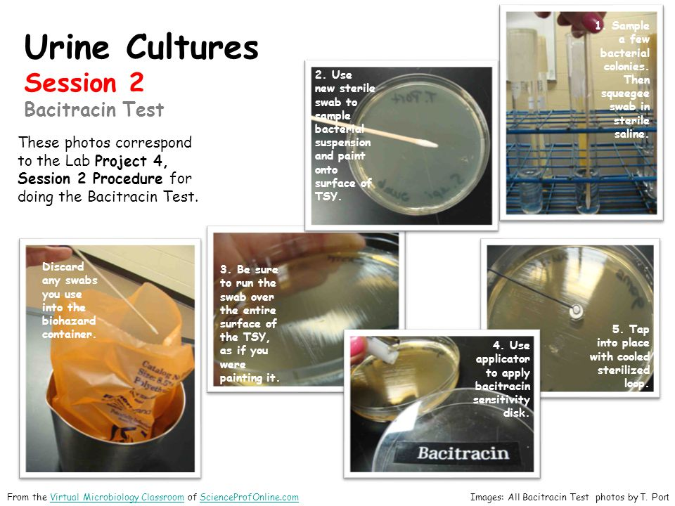 Urine Cultures Session 2 Bacitracin Test