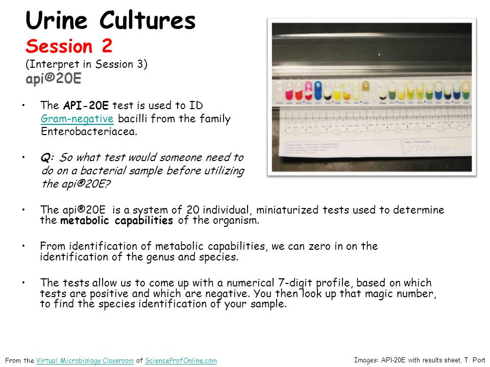 Urine Cultures Session 2 (Interpret in Session 3) api®20E