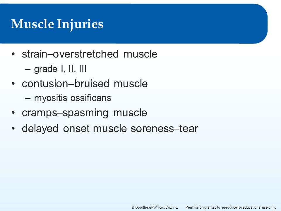 Muscle Injuries strain–overstretched muscle contusion–bruised muscle