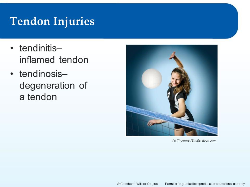 Tendon Injuries tendinitis–inflamed tendon