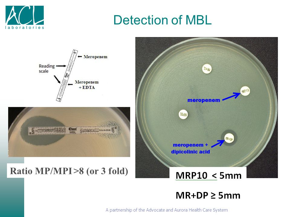 Detection of MBL Ratio MP/MPI >8 (or 3 fold)