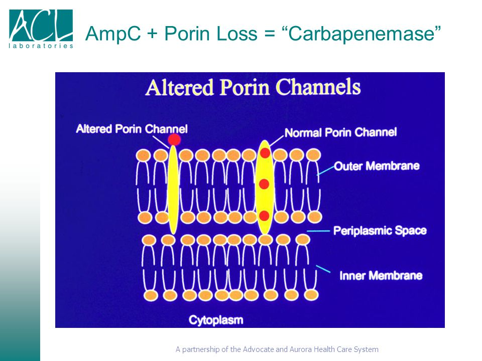 AmpC + Porin Loss = Carbapenemase