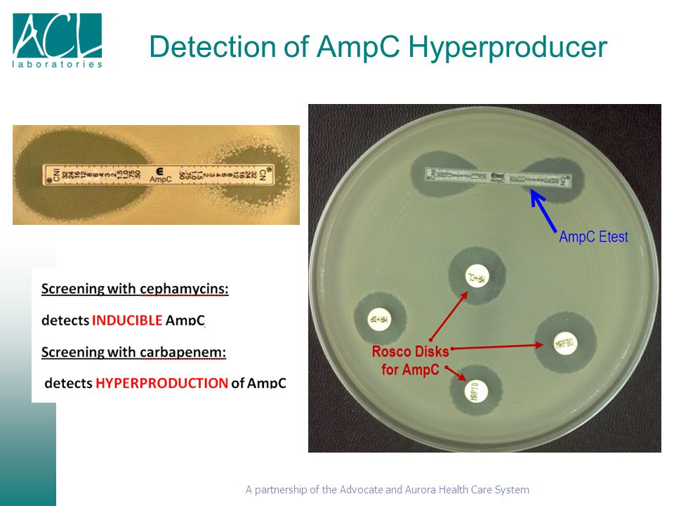 Detection of AmpC Hyperproducer