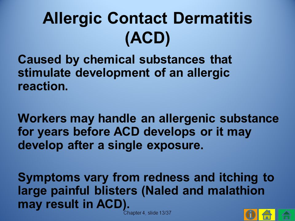 Allergic Contact Dermatitis (ACD)