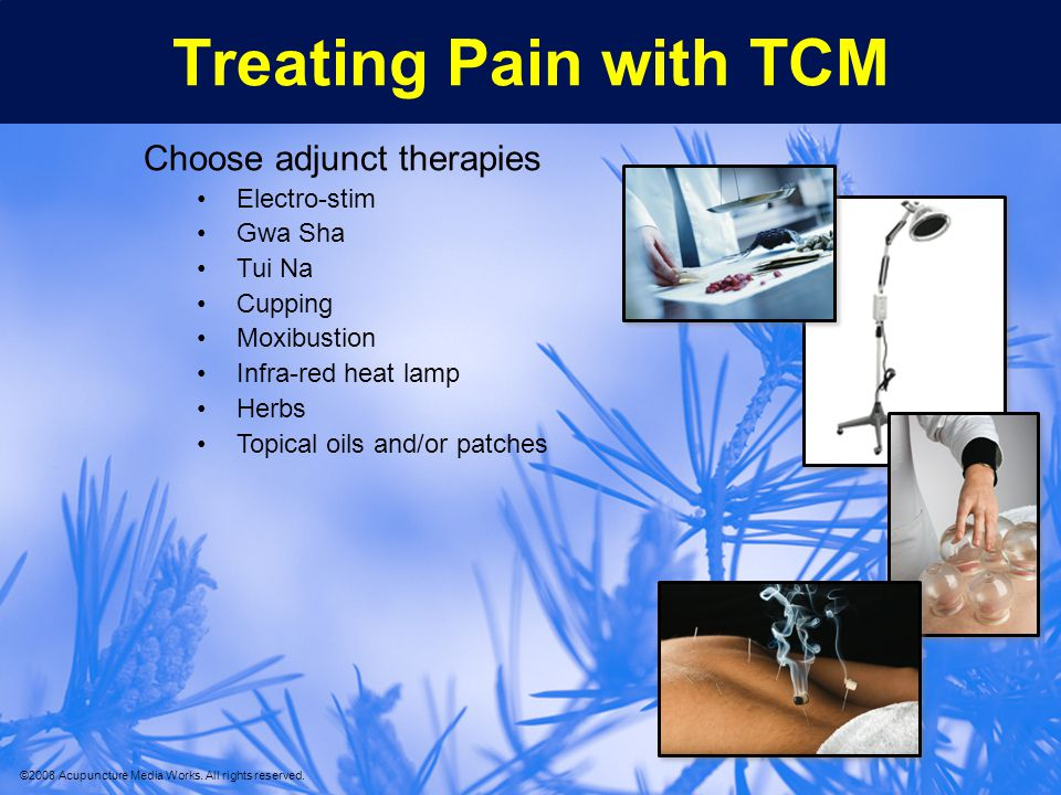 Treating Pain with TCM Choose adjunct therapies Electro-stim Gwa Sha