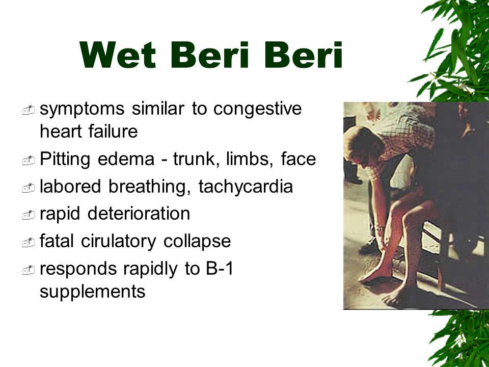 Wet Beri Beri symptoms similar to congestive heart failure