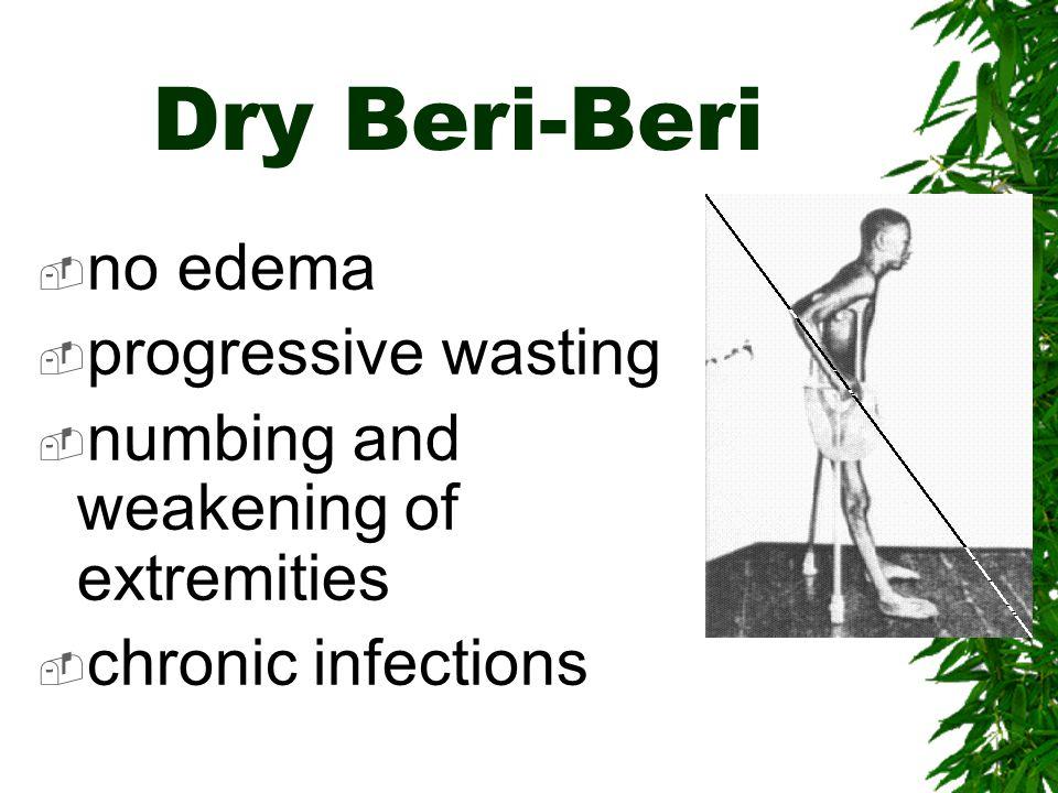 Dry Beri-Beri no edema progressive wasting