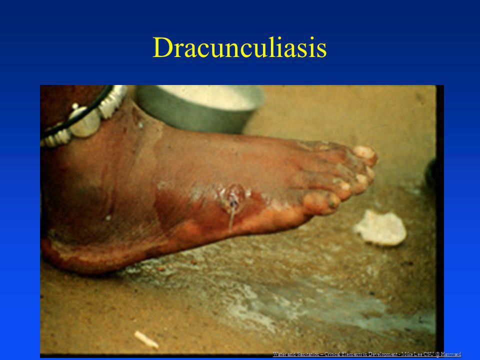 Dracunculiasis Water and Sanitation – Critical Elements in Development - Mike Lee CSU @ Hayward