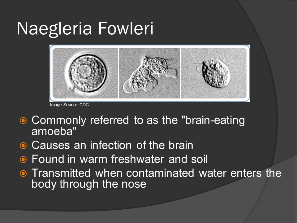 Naegleria Fowleri Commonly referred to as the brain-eating amoeba