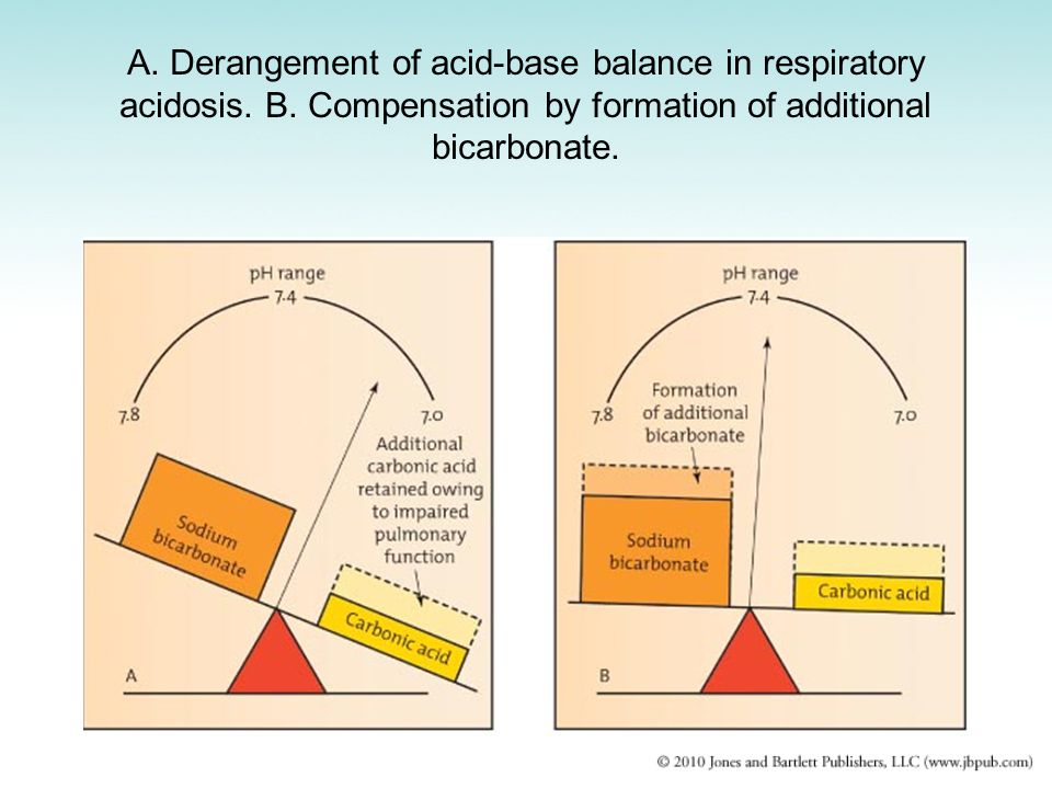 A. Derangement of acid-base balance in respiratory acidosis. B