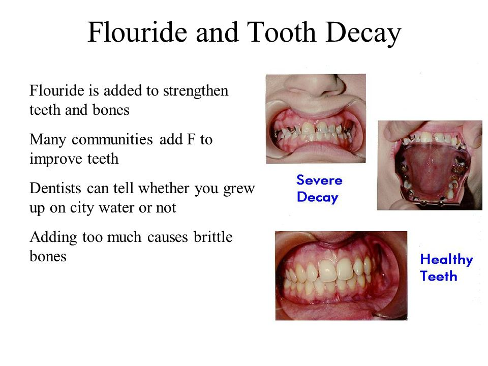 Flouride and Tooth Decay