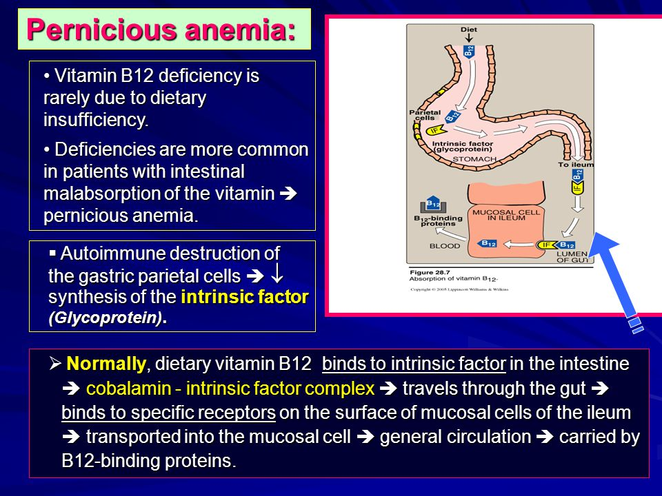 Pernicious anemia: Vitamin B12 deficiency is rarely due to dietary insufficiency.